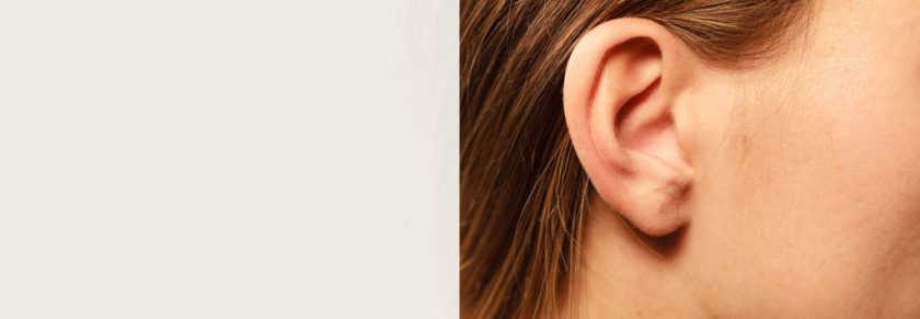 XL-Banner_0010_otoplasty (ear)