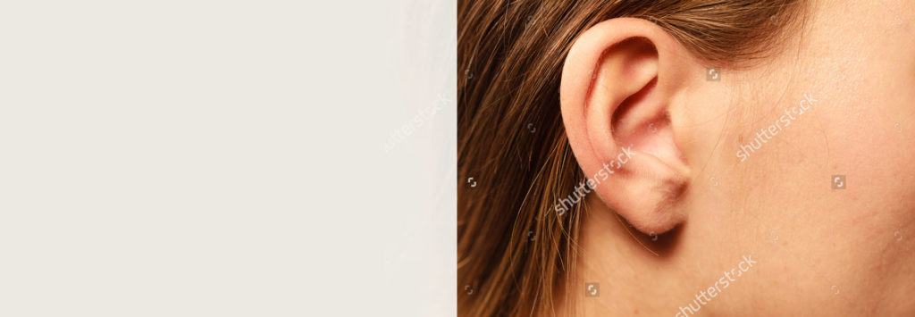 XL-Banner_0003_otoplasty (ear)